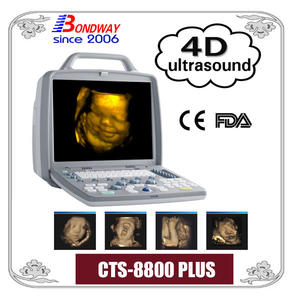 ultrasound scanner, ultrasonic machine, 4d ultrasound, 3d ultrasound